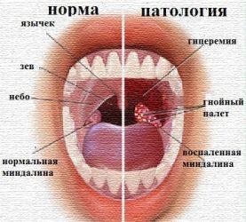 Первые признаки бактериального тонзиллита и методы лечения