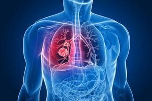 Что делать при обструкции дыхательных путей у ребенка