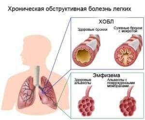 obstruktivnyj-bronxit-simptomy