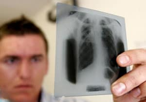 ochagovyj-tuberkulez-legkix-3