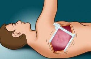 operaciya-na-legkix-pri-tuberkuleze-2