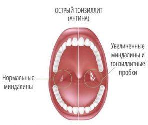Лечение тонзиллита у ребенка по методу доктора Комаровского