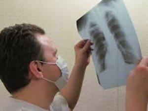 otkrytaya-forma-tuberkuleza-3