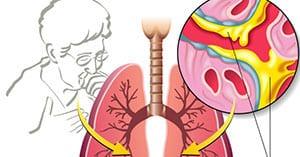 pervye-priznaki-astmy-2