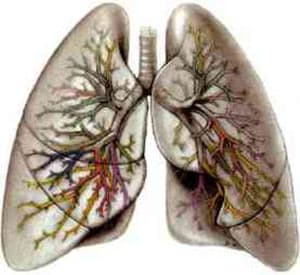 pervye-priznaki-tuberkuleza-legkix-u-zhenshhin-2