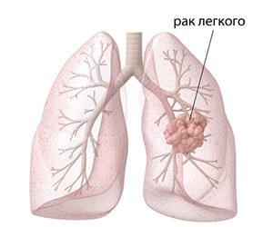 ploskokletochnyj-rak-legkogo-prognoz-3