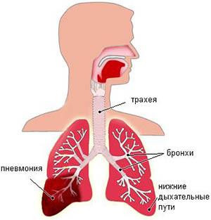 polisegmentarnaya-pnevmoniya1