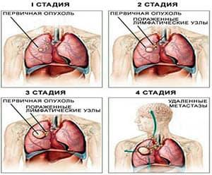 rak-legkix-simptomy