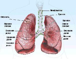 rak-legkogo-1-stadiya-prodolzhitelnost-zhizni1