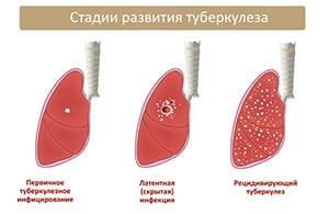 simptomy-tuberkuleza-na-rannej-stadii-razvitiya-2