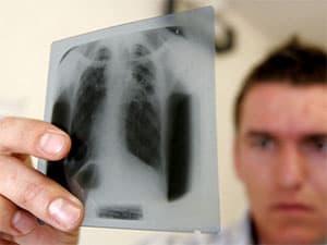 Симптомы и лечение цирротического туберкулеза