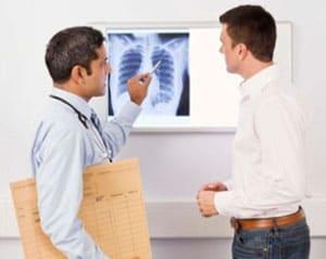 stadii-tuberkuleza-4