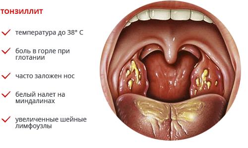 Признаки хронического декомпенсированного тонзиллита и причины