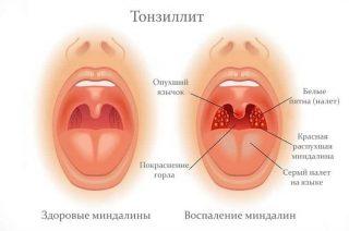 Можно ли заразиться тонзиллитом от другого человека