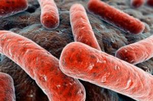 tuberkulez-kishechnika-2