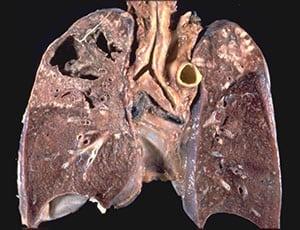 tuberkulez-legkix-4