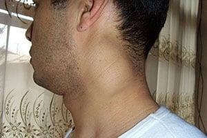 tuberkulez-limfouzlov-4