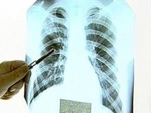 tuberkulez-na-flyuorografii-2
