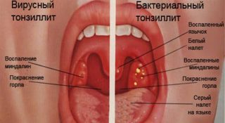 Признаки и методы лечения вирусного тонзиллита