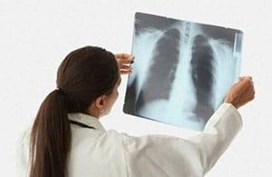Симптомы и лечение внебольничной пневмонии