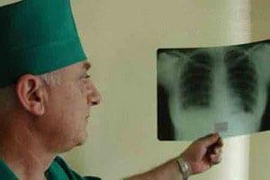 vozbuditel-tuberkuleza-5