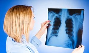 vtorichnyj-tuberkulez-4