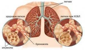 xronicheskij-bronxit